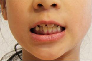 幼少期からの舌と唇の動かし方が悪い